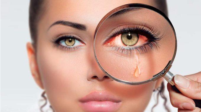 Síndrome De Ojo Seco. Síntomas, Causas Y Consejos.