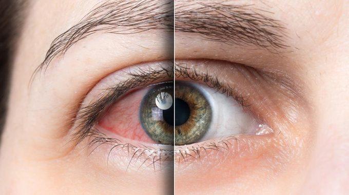 Identifica Si Sufres Del Síndrome Del Ojo Seco