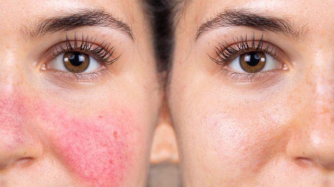 Conoce La Dermatitis Y Sus Tipos